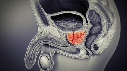 Ultradźwięki z aż 80% skutecznością pomagają już w leczeniu raka prostaty